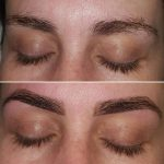 This was achieved during 1 treatment.
